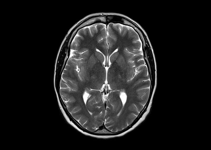 MRT des Gehirns