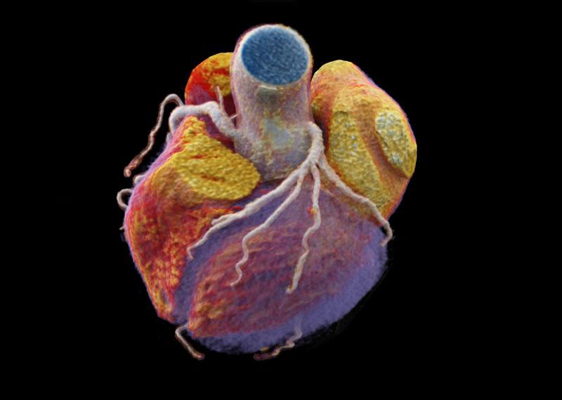 CT 3D Darstellung des Herzens