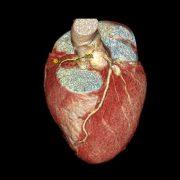 CT des Herzens