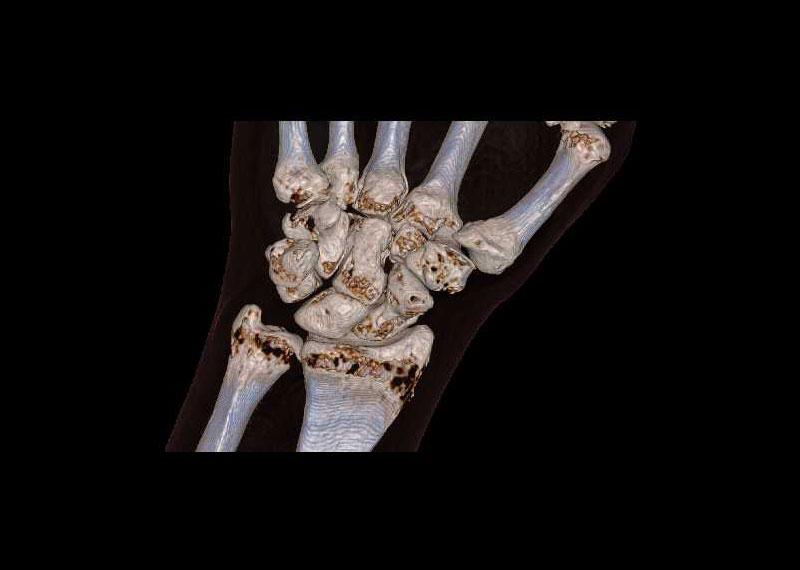 3D Rekonstruktion des knöchernen Handgelenks