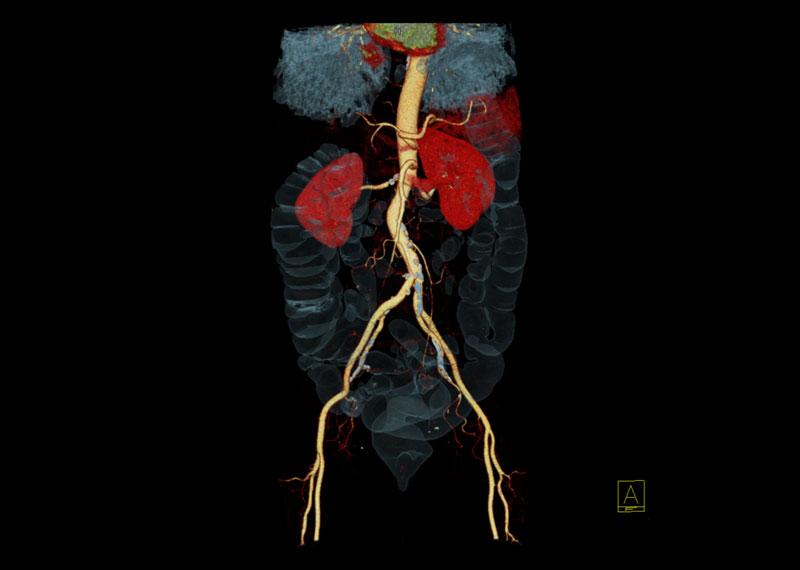CT-Angiographie der Bauch- und Beckengefäße