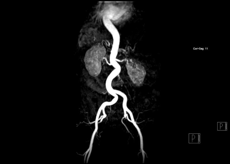 MR Angiographie der Aorta