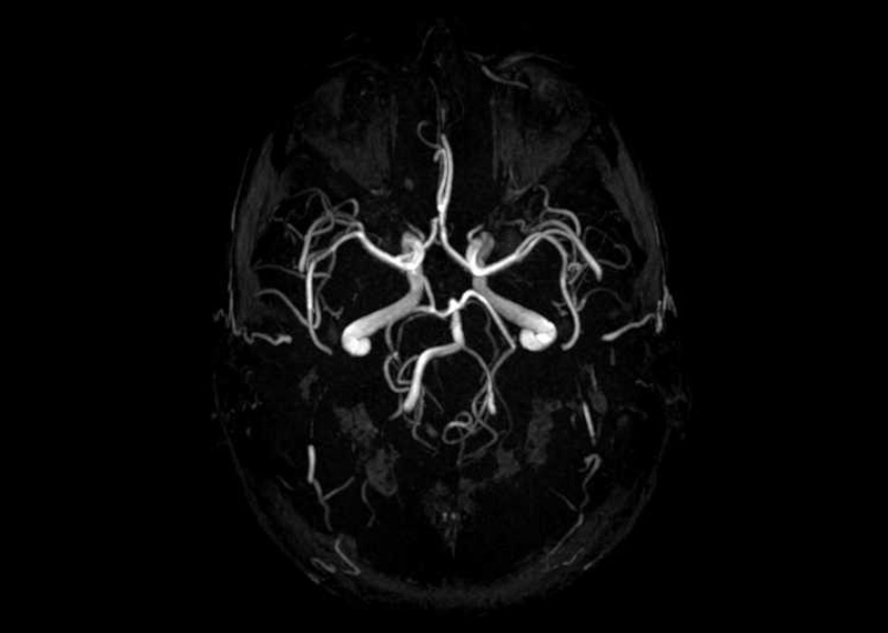 MR Angiographie des Gehirns