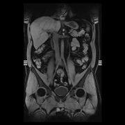 MRT der Bauch- und Beckenorgane