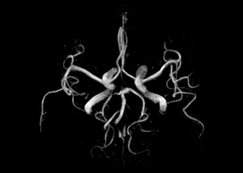 MRT der Hirngefäße
