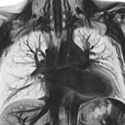 MRT der Lungengefäße