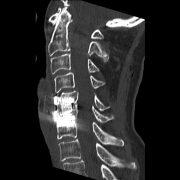 Postoperative CT der Wirbelsäule